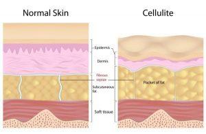 Normal Skin vs Cellulite